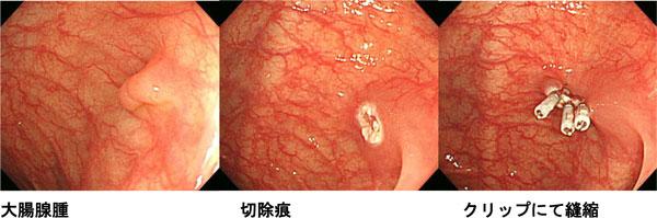 切除 大腸 ポリープ